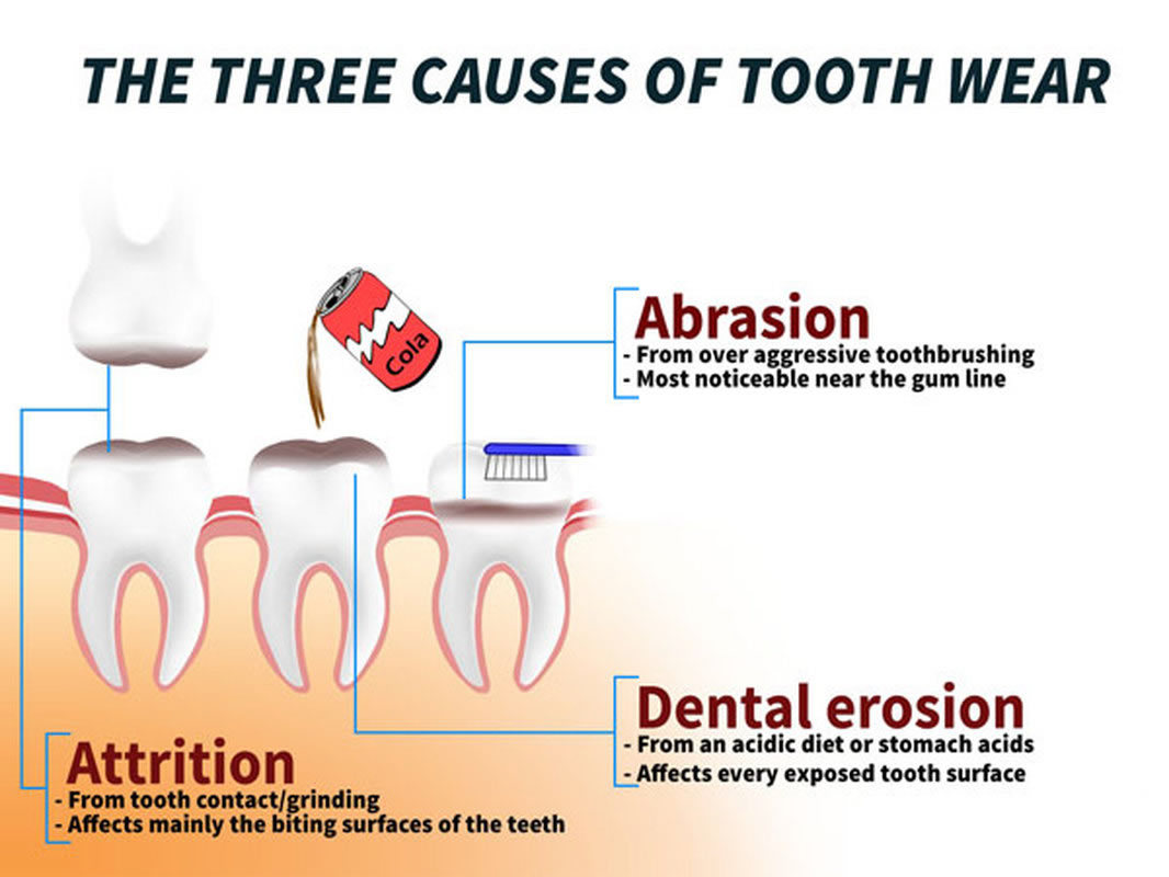 causes-of-toothwear.jpg