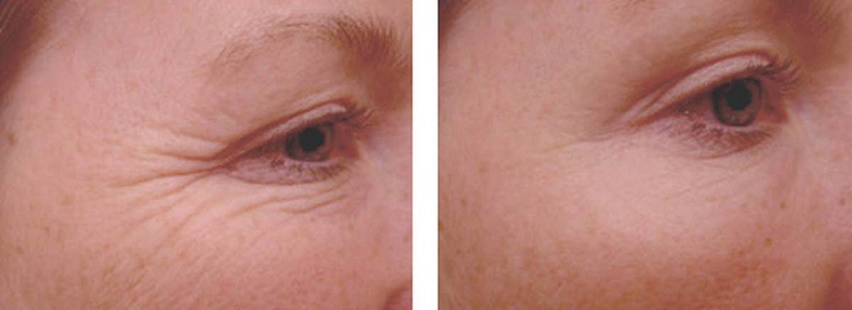 botox-face2.jpg